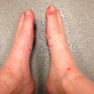My feet were torn up a bit